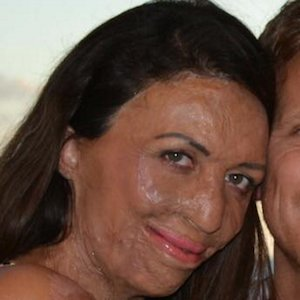 Turia Pitt Real Phone Number Whatsapp